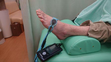 中足骨骨折に超音波骨折治療器