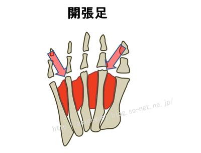 開張足から外反母趾や内反小趾になりやすくなる方向