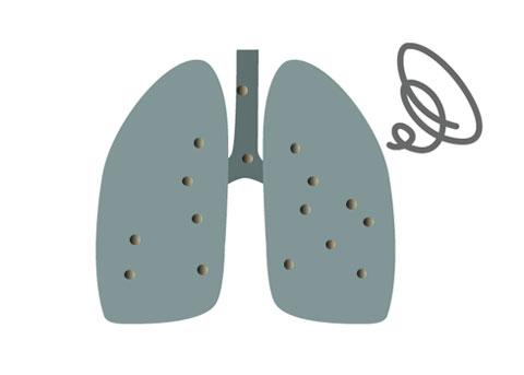 肺の中に入ったPM2.5