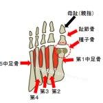 足の親指の付け根の下の膨らんでいる部分が痛いのは種子骨炎かも