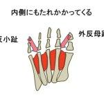 外反母趾とは?外反母趾になる原因と軽度のうちに自分で治す方法