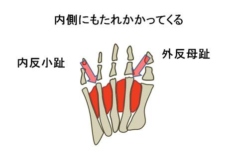 外反母趾と内反小趾の状態