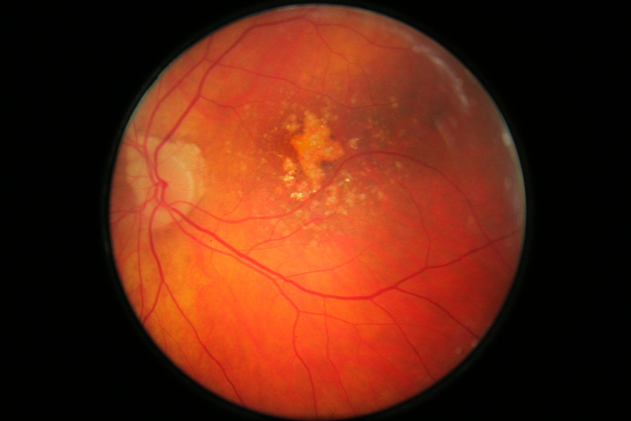 εκφυλιση ωχρας κηλιδας dry macular degeneration