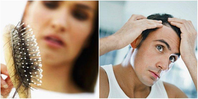 выпадение волос у мужчин и женщин