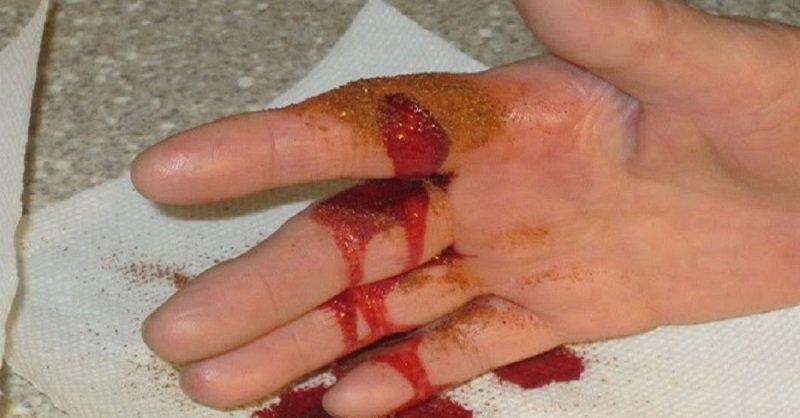 остановить кровь при порезе