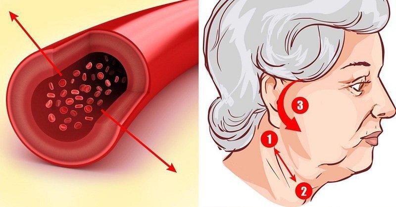 акупрессура при гипертонии