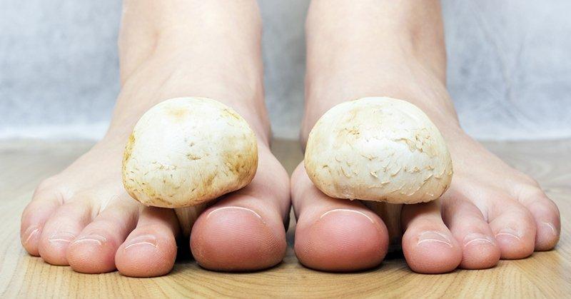 лечение грибка на ногтях в домашних условиях