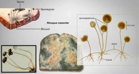 میوکورمائیکوسز اور کورونا کا رشتہ 1
