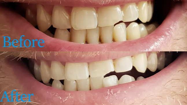teeth whitening trays before and after shot