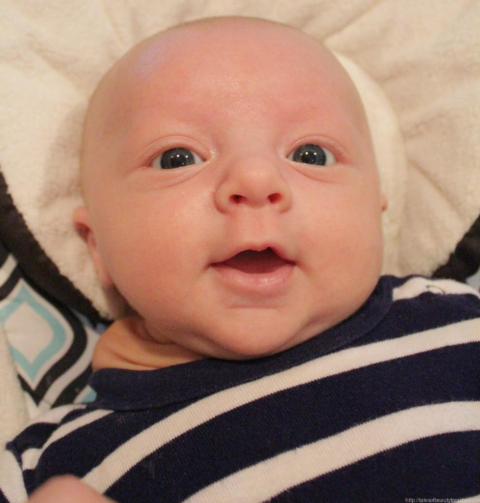 An update for Levi's cystic hygroma - Tales of Beauty for Ashes