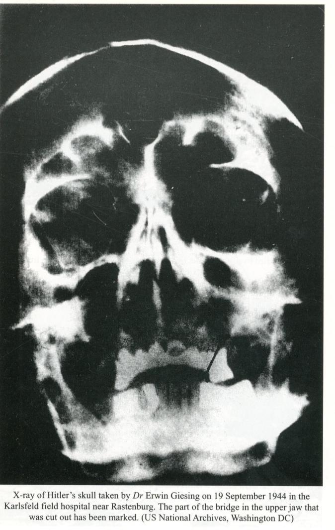 hitler's skull