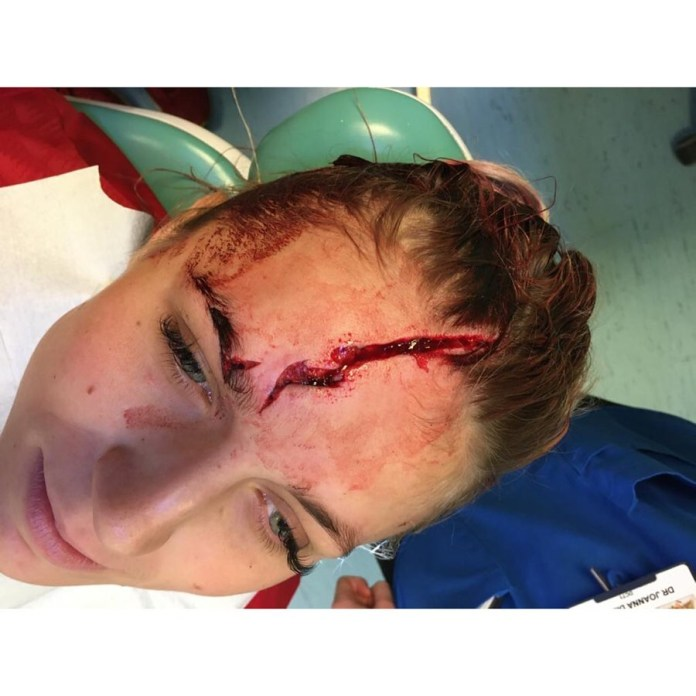 Kitching posted pictures of her wound, which she suffered in training