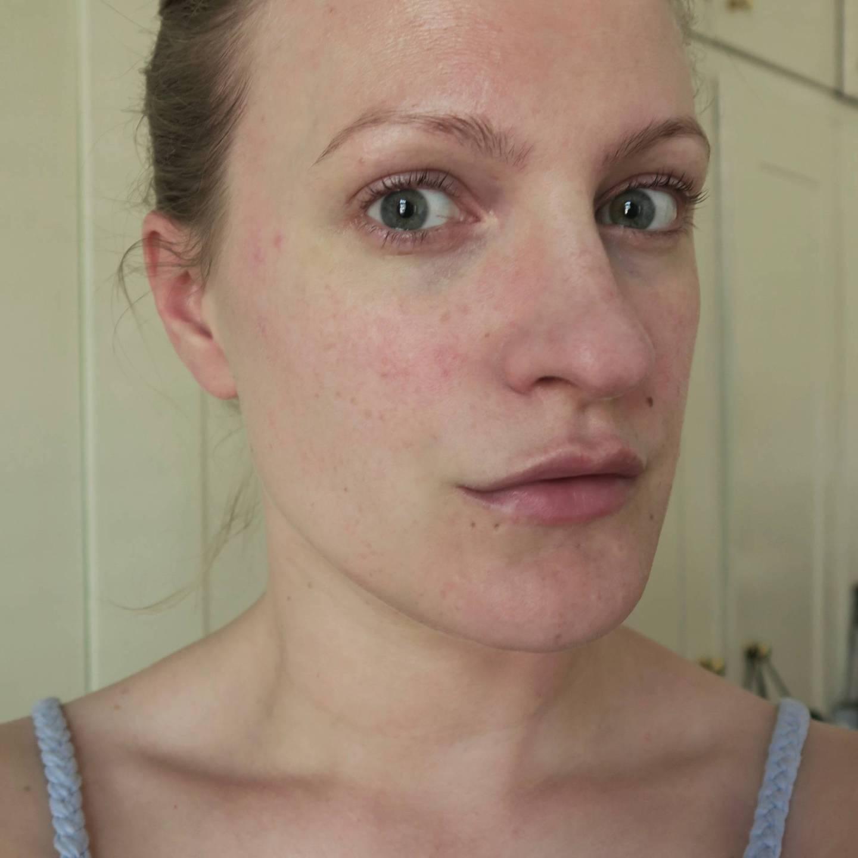 Rosacea Cover Ups For Men Amp Those Who Prefer Light Coverage