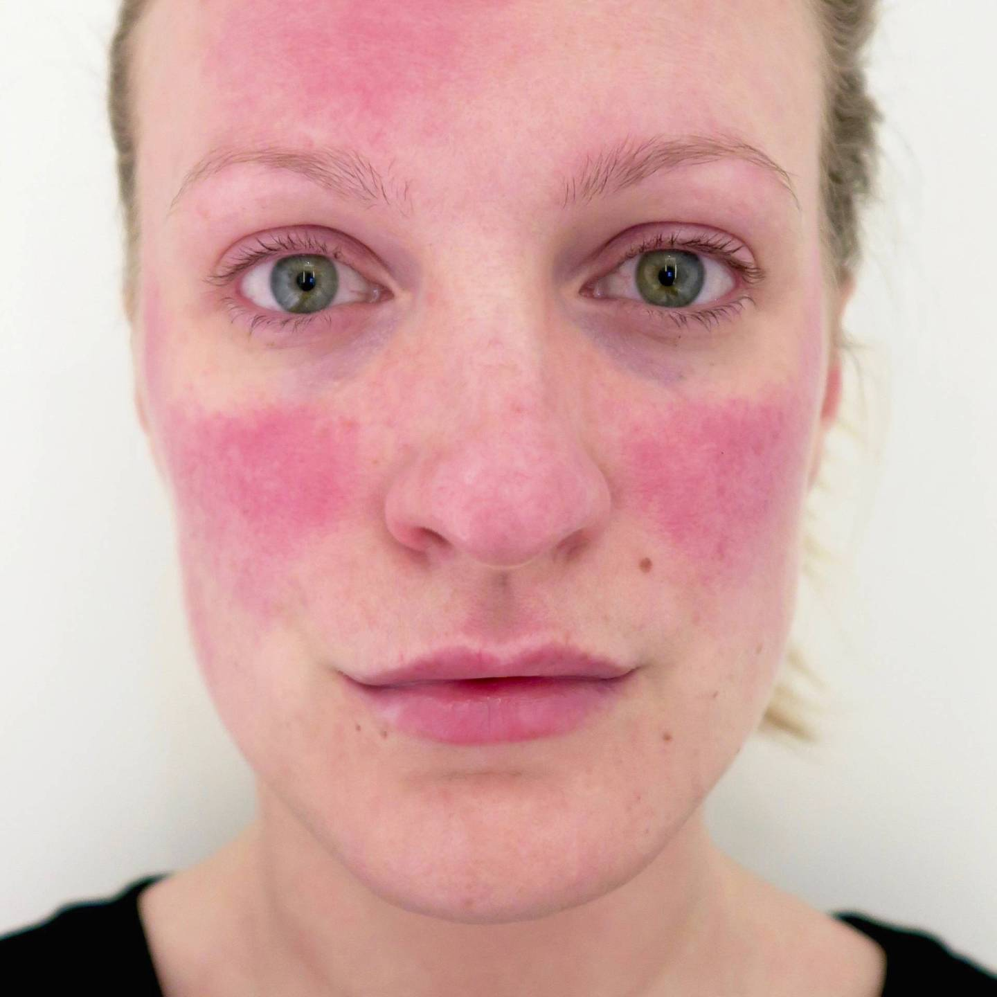 To Wear Or Not To Wear: why I wear make up to cover my rosacea