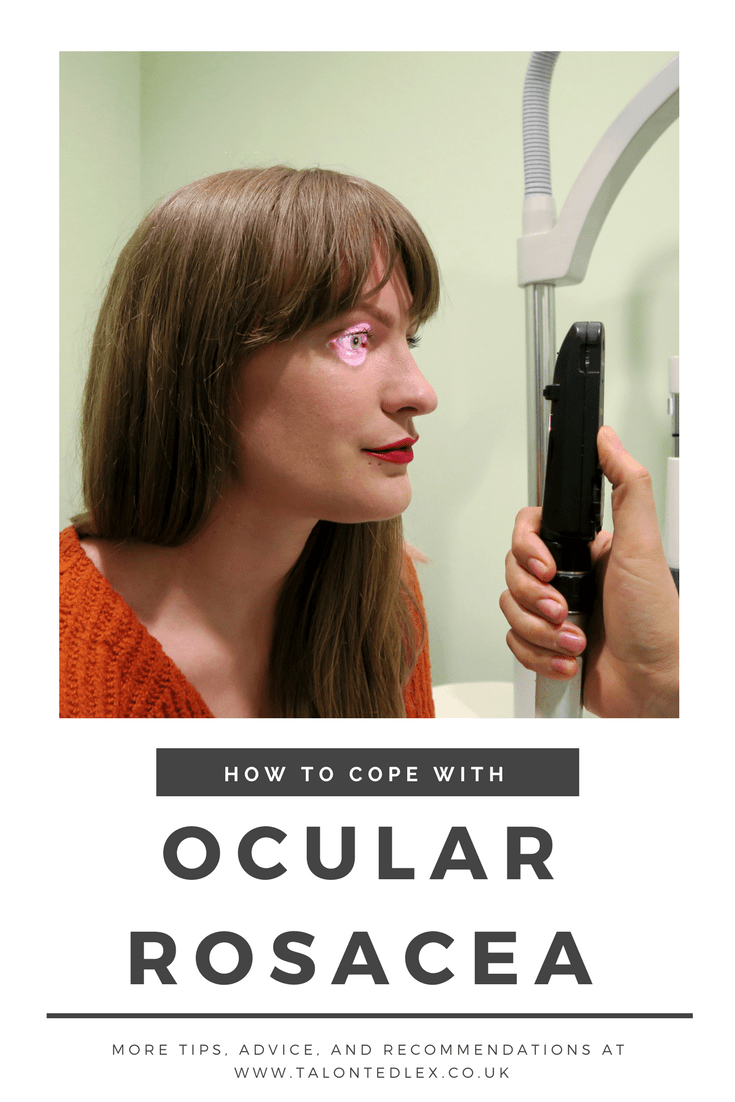 BLOG POST: Tips for caring for ocular rosacea / dry, sensitive eyes