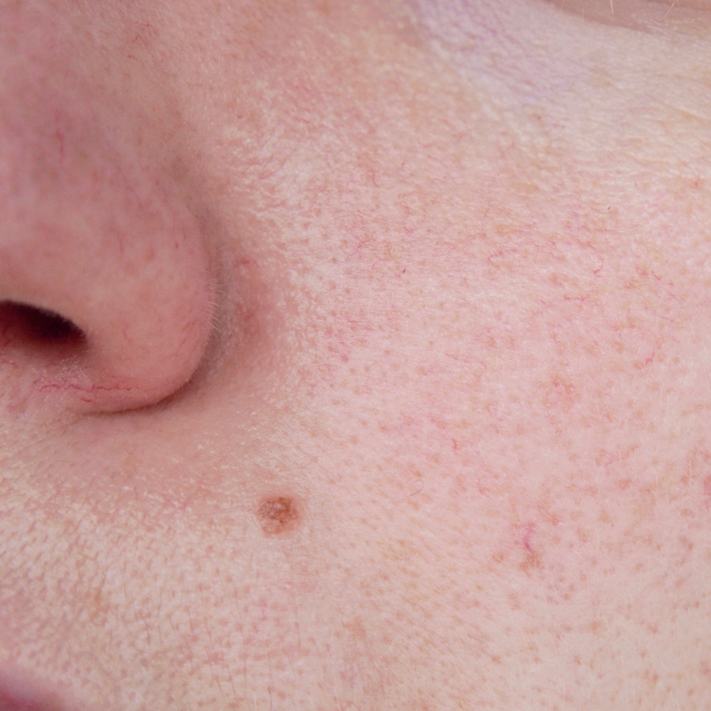 Close up of rosacea thread veins
