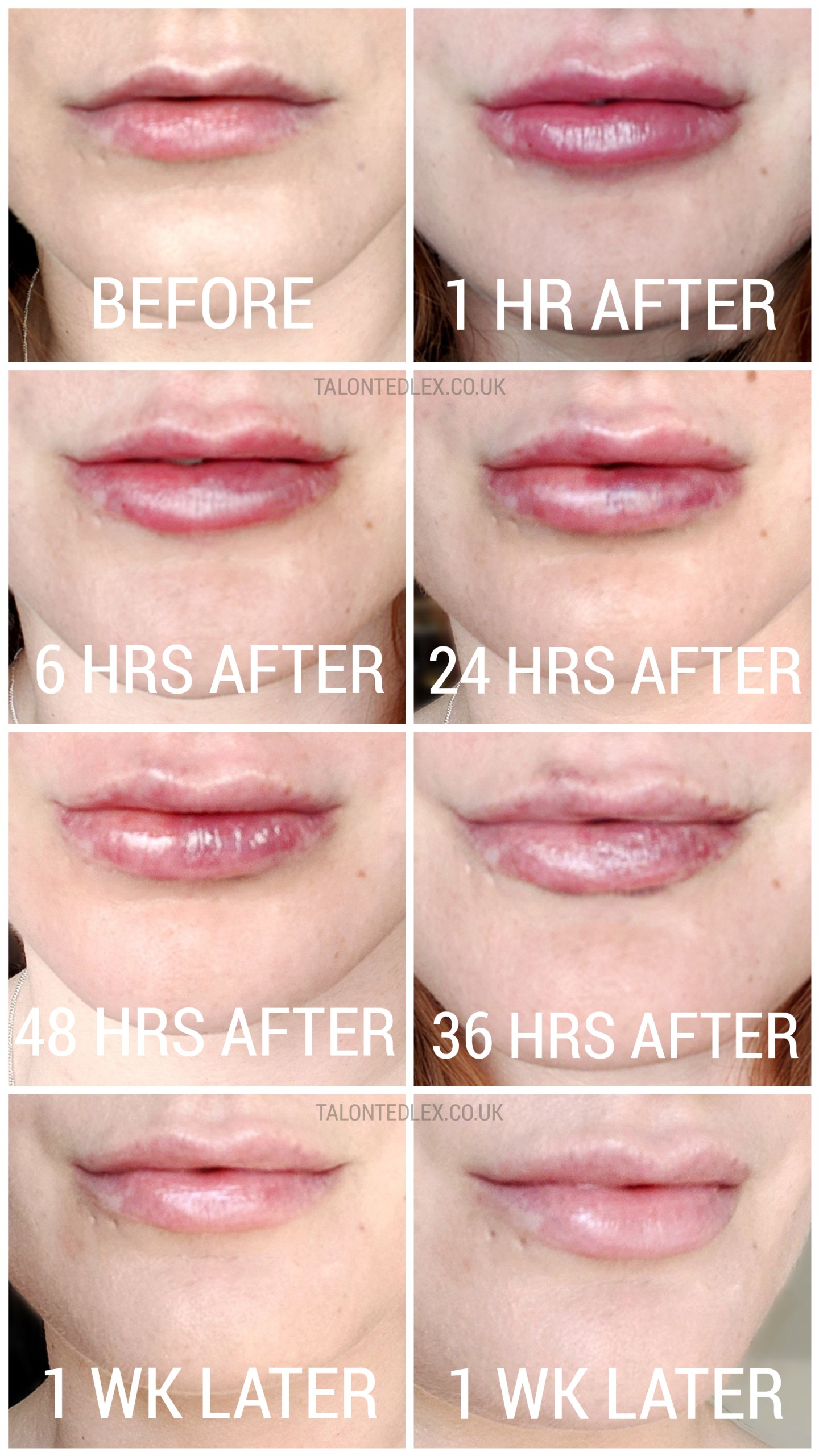 My Lip Fillers Experience with Dr Pamela Benito // Talonted Lex