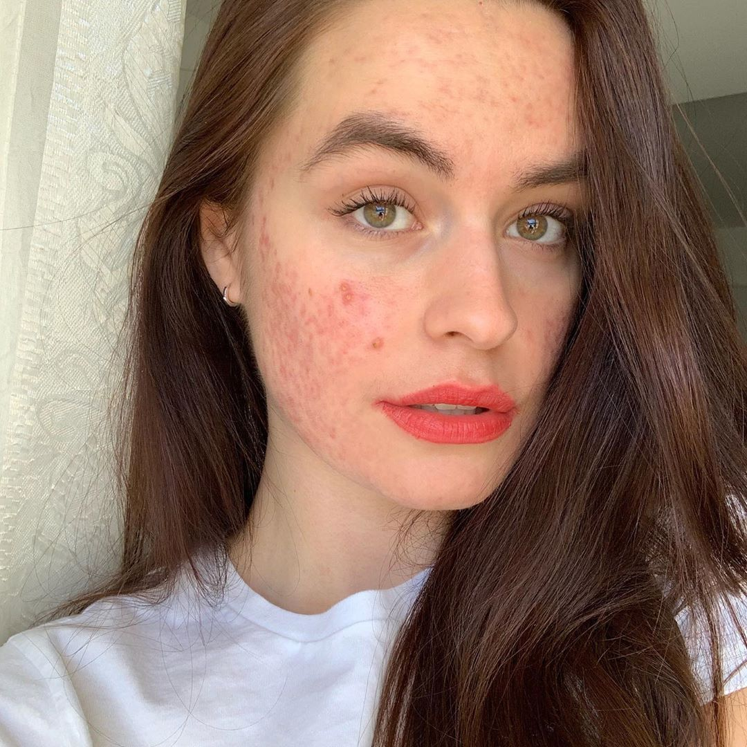 Repin and click to read my interview with Sofia (@isotretinoinwiths), acne and skin positivity advocate. She talks about skin positivity, shares her tips for self love, and the media visibility of acne. #talontedlex #skinpositivity #acnepositivity