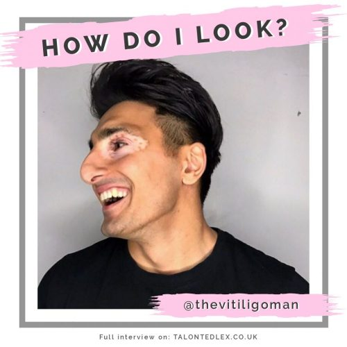 Read my interview with the incredible Shankar Jalota (otherwise known as The Vitiligo Man) - a vitiligo model and skin positivity advocate. He talks about wearing make up to cover vitiligo, the impact of skin on mental health and the media visibility of vitiligo. #talontedlex #thevitiligoman #bodypositivity #skinpositivity