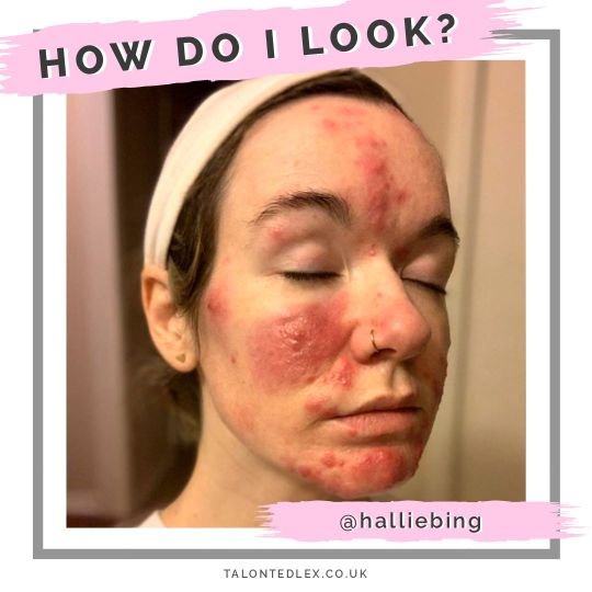 Read my interview with Hallie (@halliebing): skin positivity champion and rosacea sufferer. She shares her rosacea advice and advice on how to cope psychologically with a skin condition. #talontedlex #skinpositivity #rosaceatips