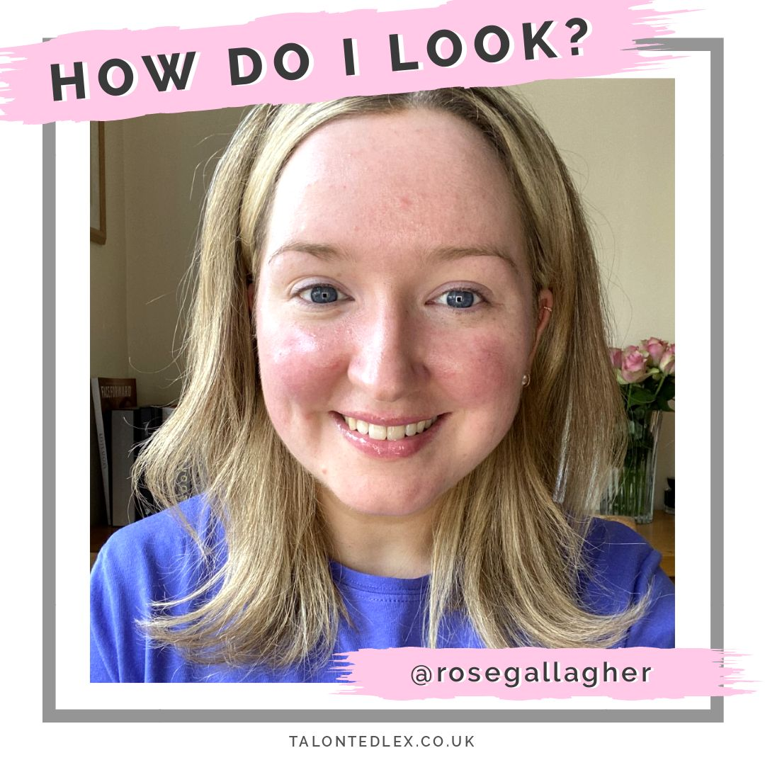 Read my interview with Rose (@rosegallagher): make up artist and rosacea sufferer. She shares her rosacea advice, make up tips, and advice on how to be positive even on bad days. #talontedlex #skinpositivity #rosaceatips #rosaceamakeup