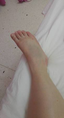 The Injury. Can you see the bruise?