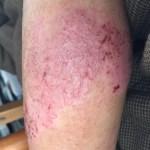 小児アトピー性皮膚炎:奇跡的改善!