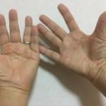アルツハイマー病と後頭神経痛と私の右手のますかけ線