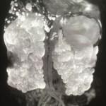 多発性嚢胞腎(Polycystic Kidney)と腰痛
