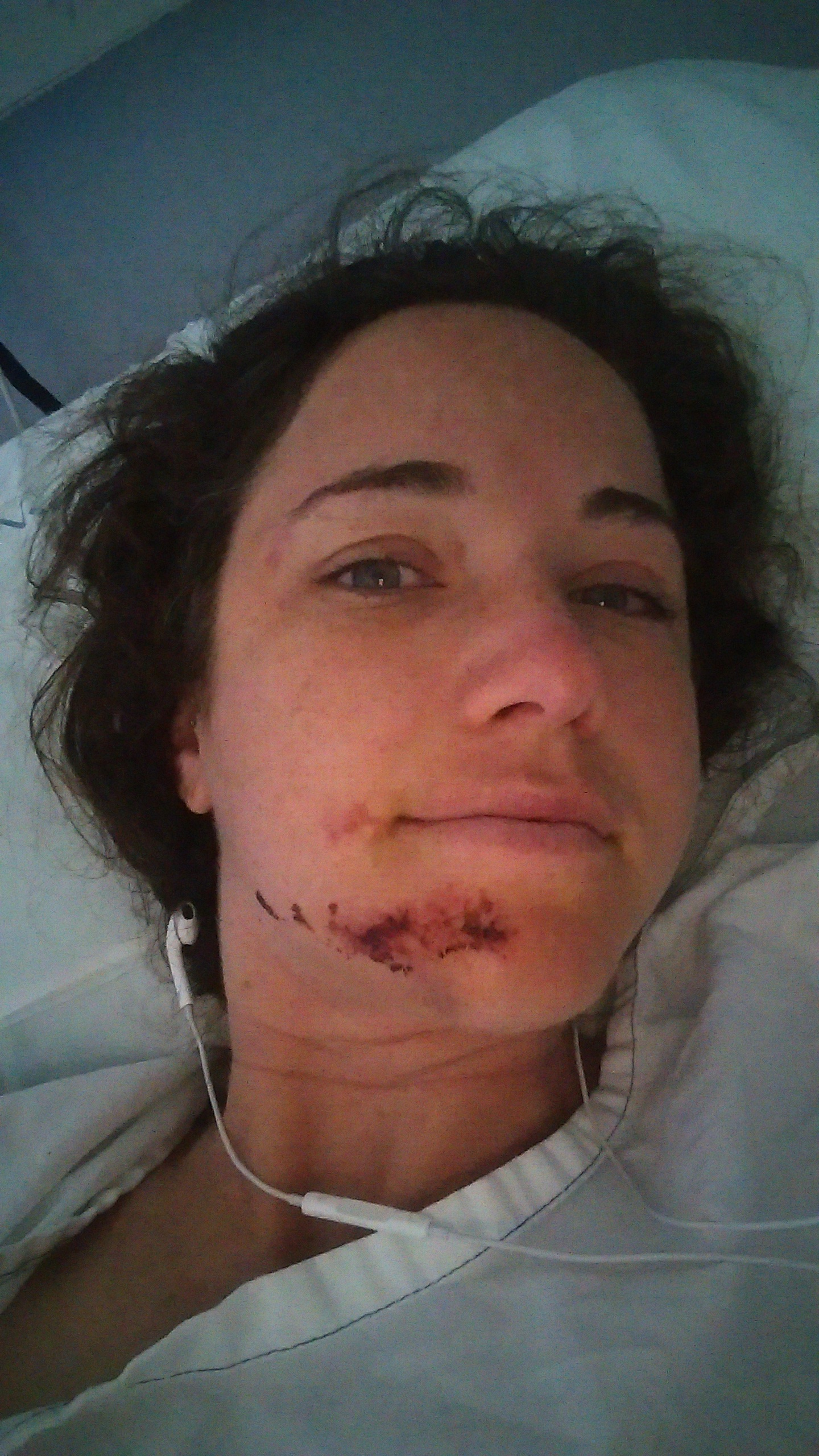 I was hit by a car, paralysed and copped a head injury so bad I couldn't speak