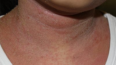 A 10-year-old girl with 5 years of eczema flared up with oozing and crust involved 30% of body surface area