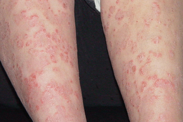 A 13-year-old girl with reddish psoriatic plaques on lower limbs 银屑病