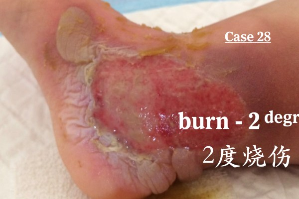 Management of 2nd-degree Burns 二度烧烫伤的治疗