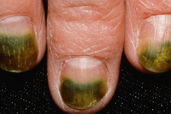 Nail Signs Green nail syndrome 绿甲综合征