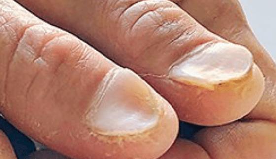 Nail Signs Koilonychia (spoon nails) 反甲