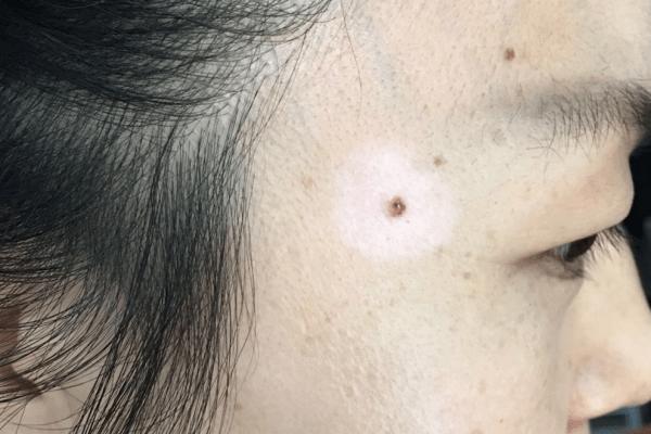 Halo nevus also known as Leukoderma acquisitum centrifugum, Sutton's nevus, Perinevoid vitiligo 晕痣