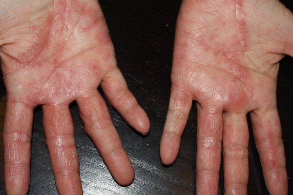 Hand Eczema 手湿疹