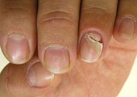 Nail Signs due to abnormal nail matrix function – Nail shedding 脱甲病