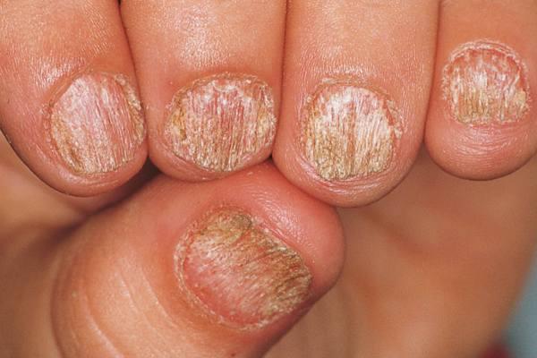 Nail Signs due to abnormal nail matrix function – sandpapered nails 粗面甲