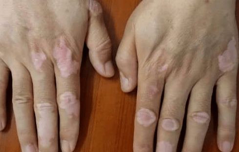 Treating vitiligo with herb medicine 植物中药治疗白癜风