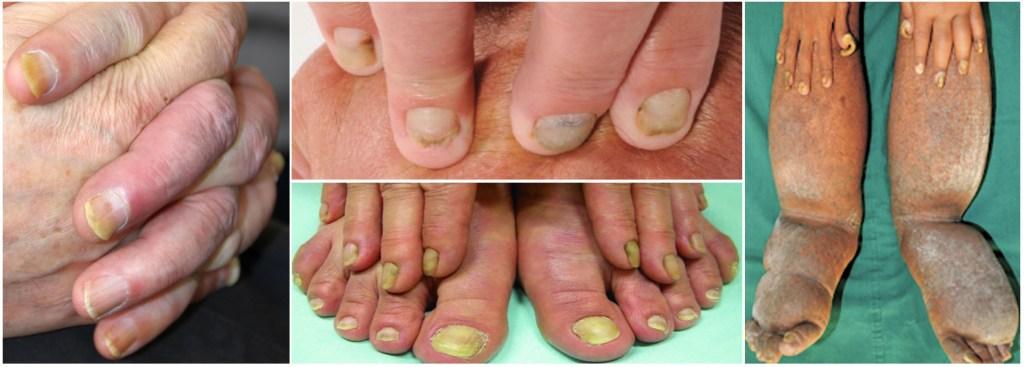 yellownail