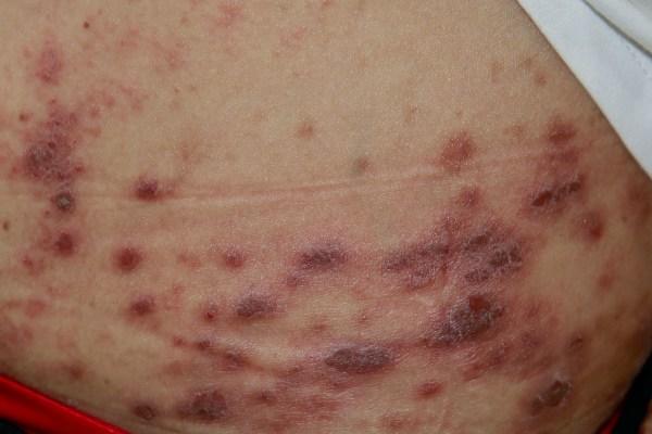 Prurigo Simplex trigged by hair dyes 染发剂激发的单纯痒疹