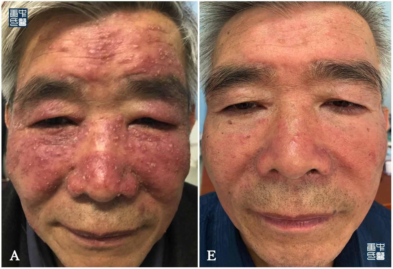 lupus miliaris d3