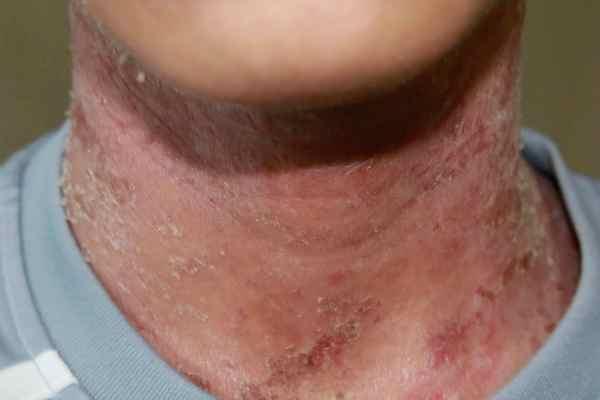A 15-year-old boy with  10-year eczema, 15岁少年10年湿疹