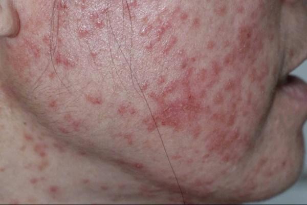 Retinoid Dermatitis 维A酸皮炎