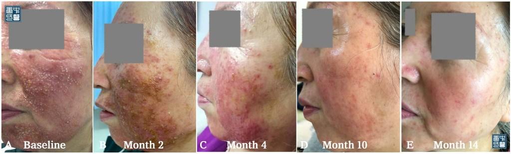 77 steroid dermatitis c
