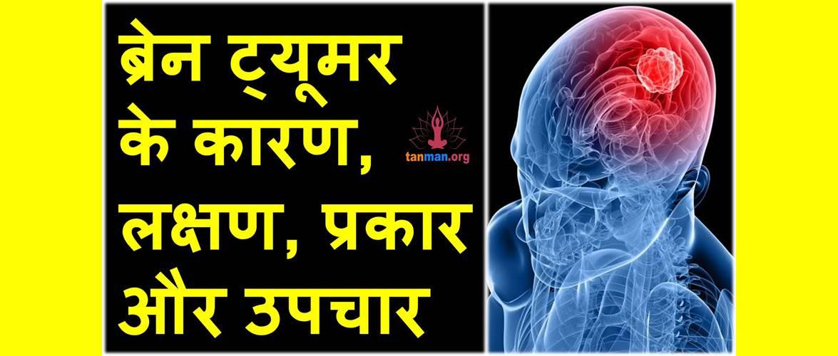 ब्रेन ट्यूमर के कारण, लक्षण, प्रकार और उपचार