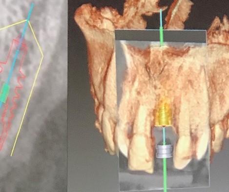 CBCT innsetting av implantat
