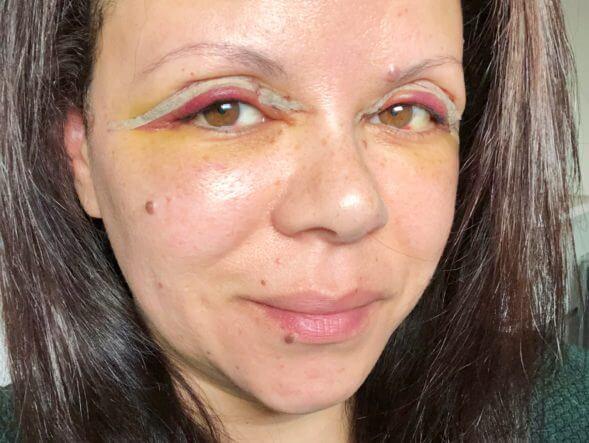 Rode en gezwollen oogleden en gele verkleuring rondom mijn ogen een paar dagen na de ooglidcorrectie