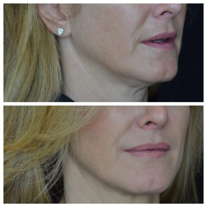 Thermage treatment, Dallas Center for Dermatology and Aesthetics